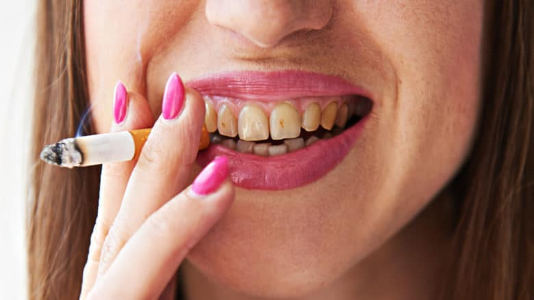Tobacco and oral health - Dr  Koop